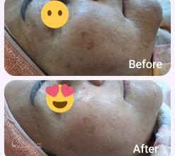 پاکسازی و مراقبت از پوست
