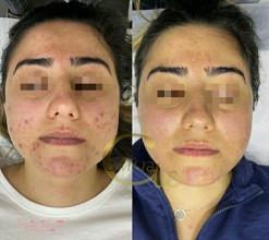 دوره انلاین مراقبت از پوست